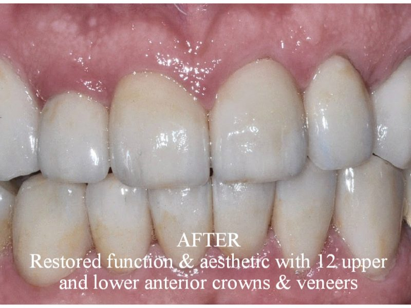 After Restored function & Aesthetic with 12 upper and lower anterior crowns & veneers